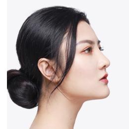 杭州鼻翼缩小的效果