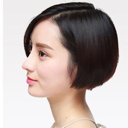 杭州如何矫正鼻孔鼻孔肥大呢