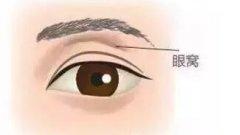 杭州打玻尿酸丰眼窝效果如何