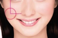 杭州丰苹果肌术,让你美出少女的模样