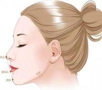 杭州玻尿酸丰下巴术,让你美的更有辨识度