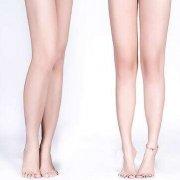 杭州快速减肥瘦腿的方法是什么