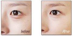 杭州医院激光祛黑眼圈术后护理