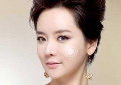 杭州丰苹果肌术,有了她美的年轻,美的甜美
