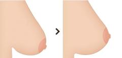 如何矫正下垂的乳房