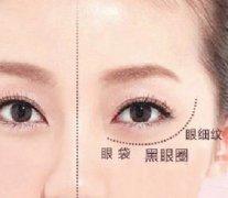 杭州如何快速祛除眼袋呢