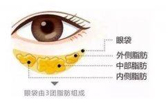 杭州医院有什么办法能快速祛眼袋吗