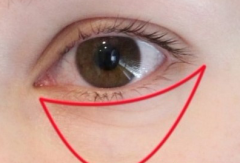 杭州祛眼袋的方法有哪些