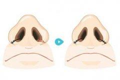 杭州什么是鼻头缩小术