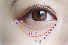 杭州快速祛除眼袋的办法是什么
