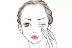 杭州祛眼袋是否安全呢