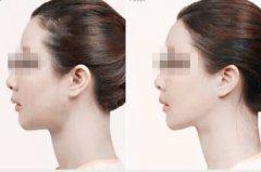 玻尿酸注射丰额头前后对比照
