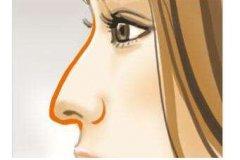 鹰钩鼻矫正方法