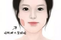 杭州艺星整容瘦脸针
