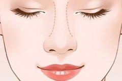 杭州注射隆鼻和假体隆鼻哪个好