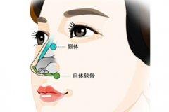 杭州隆鼻大概多少钱