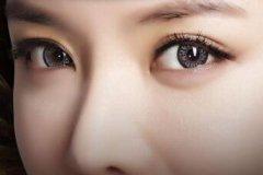 杭州开眼角手术整形